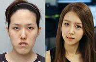 korean_plastic_surgery_07_580